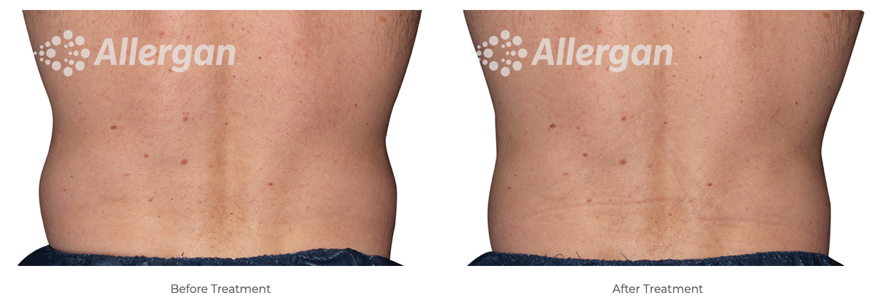 Coolsculpting treatment before and after side-by-side photos of person's back