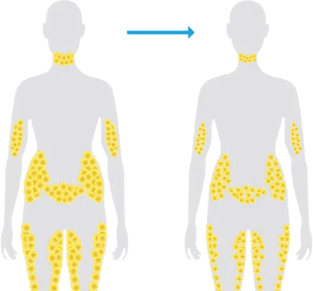 Fat Cells After Typical Weight Loss