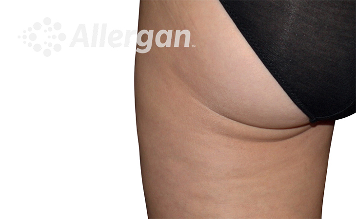 CoolSculpting ELITE Thigh After Treatment