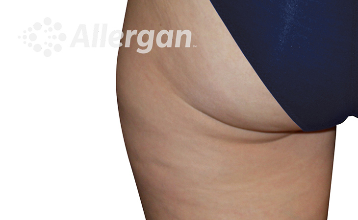 CoolSculpting ELITE Thigh Before Treatment